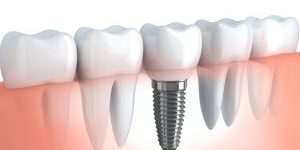 bigstock-dental-implant-51820759